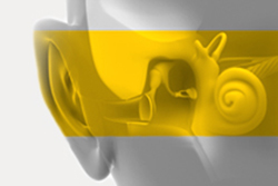 degrees of hearing loss?