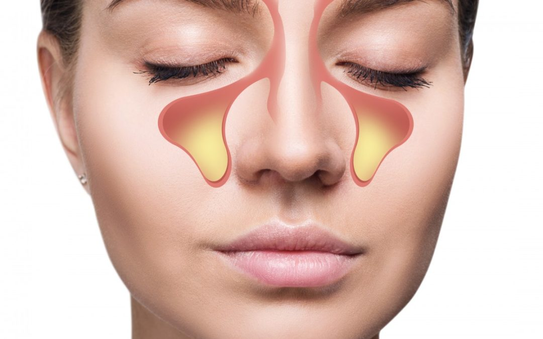 How Balloon Sinuplasty Compares To Traditional Nasal Surgery