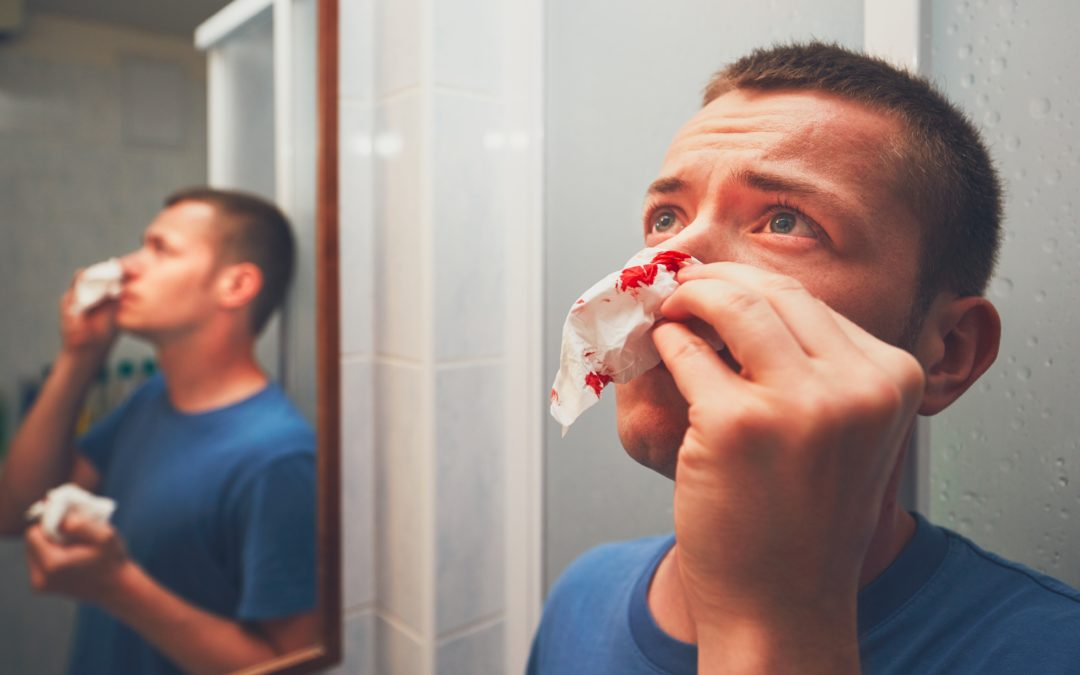How to Prevent (and Stop) Nosebleeds